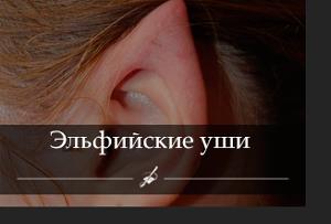 elfiyskiye-ushi