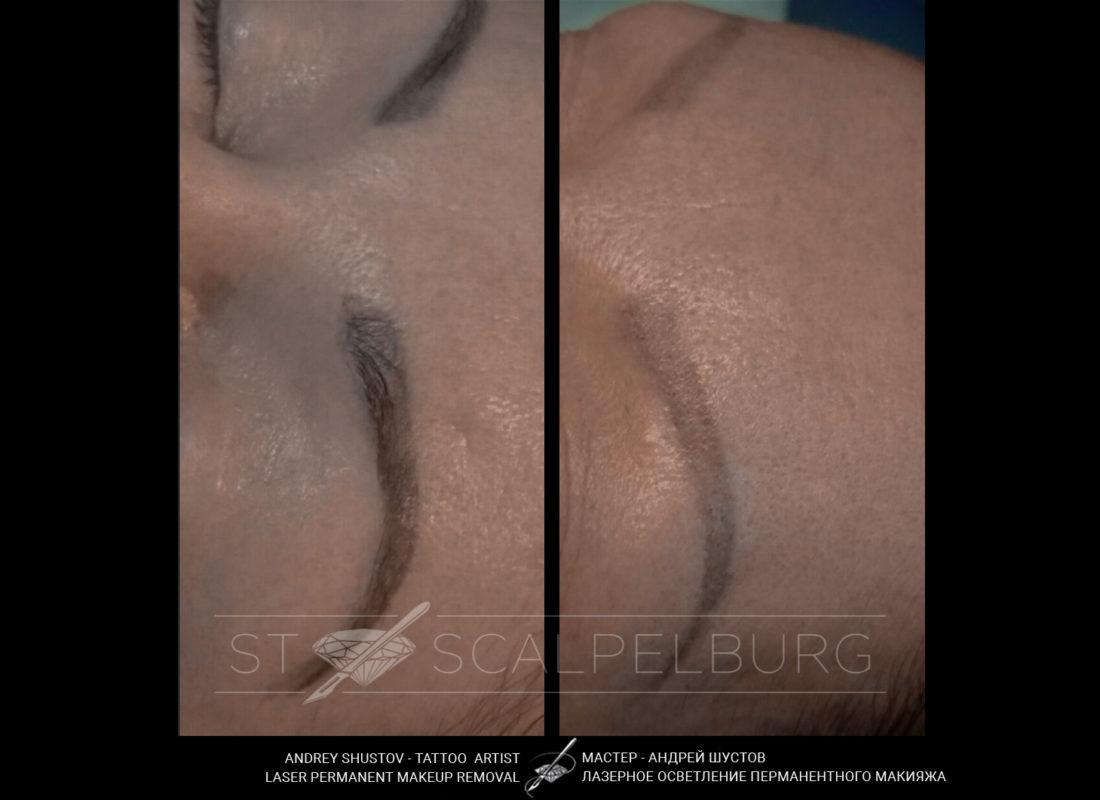 Лазерное осветление перманентного макияжа